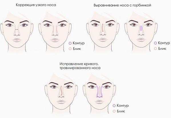 Коррекция узкого, кривого и носа с горбинкой