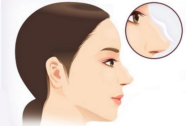 Несмотря на сложности, скорректировать нос с горбинкой все же можно