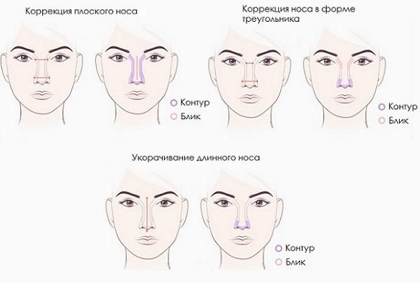 Коррекция плоского, длинного и носа в форме треугольника