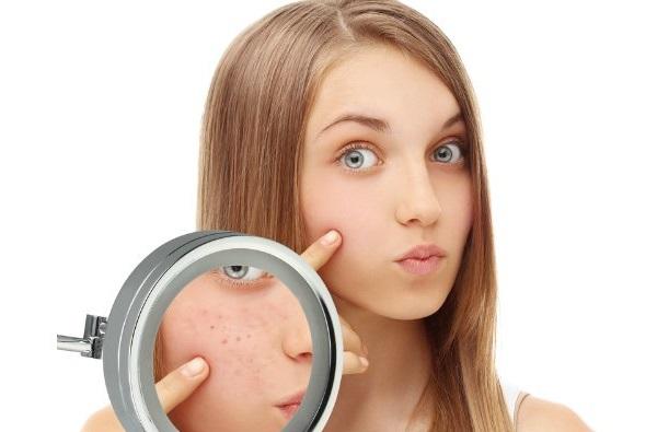 Масло чайного дерева может использоваться как для избавления от высыпаний на лице, так и в целях их профилактики