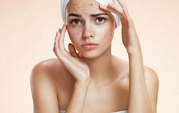 Применение маски из аспирина окажет эффективность при многих проблемах с кожей