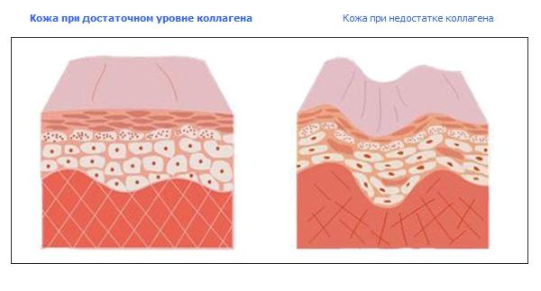 Коллаген делает кожу эластичной, что является незаменимым свойством для кожи лица