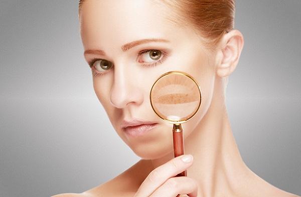 Справиться с пигментными пятнами на лице можно с помощью масок на основе льняного масла