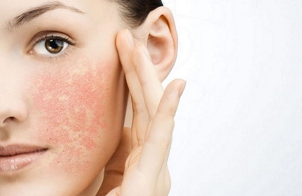 Применение масла может вызвать негативные реакции на лице, в таком случае следует незамедлительно омыть лицо