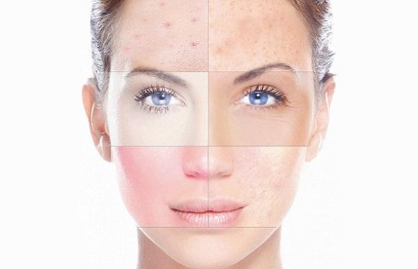 Использование косметики из минералов Мертвого моря позволяет избавиться от многих проблем кожи лица