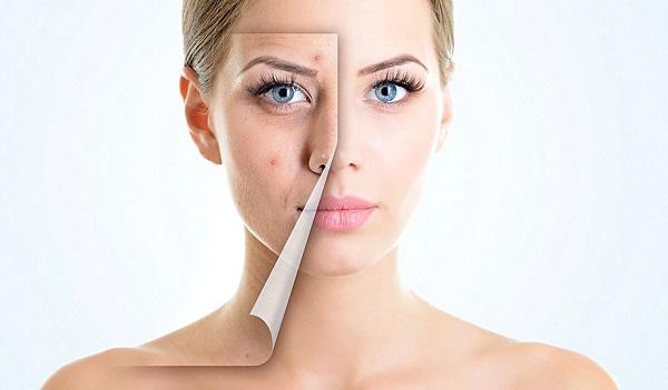 Против угревой сыпи рекомендуется применять гипоаллергенную косметику